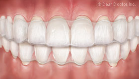 clear-orthodontic-aligner
