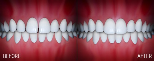 Before Photo Of A Bite With Spaces In Between Teeth & After Photo Of Aligned Bite With Spaces Closed